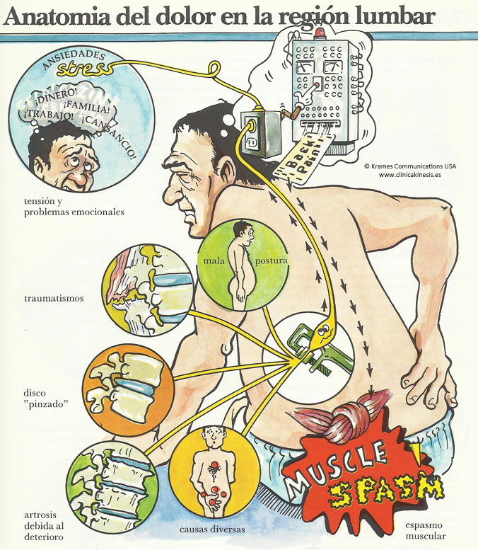 Anatomía del dolor en la región lumbar. Clínica Kinesis